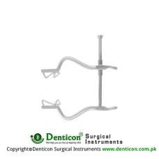 "Gosset Retractor Stainless Steel, 18.5 cm - 7 1/4"" Spread - Lateral Blade Size 140 mm - 63 x 35 mm"
